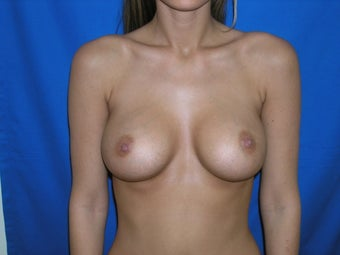 Breast Augmentation after 168014