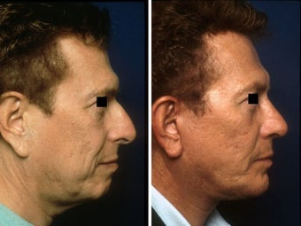 Rhinoplasty, chin implant and facelift before 139116