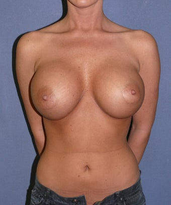 Maximum Breast Augmentation.   after 309979