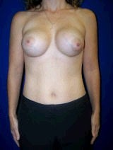 Extra Large Breast Augmentation, Revision Breast Surgery