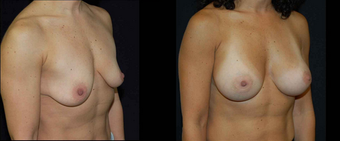Breast Implants after 150814