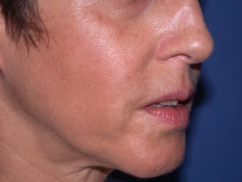 Before & After Perlane to the nasolabial folds after 48607