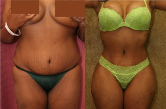 tummy tuck revision before 302681