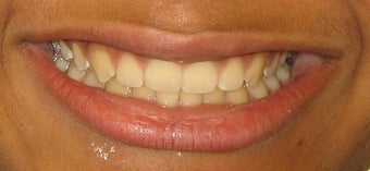 Braces to correct spacing, overbite after 346425