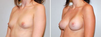 Breast augmentation after 330264