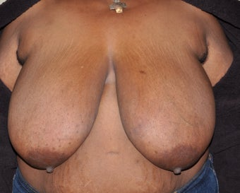 Breast Reduction before 287439