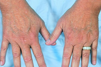 Radiesse for Hand Rejuvenation before 114166