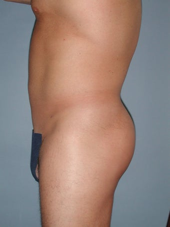 Liposuction 581412
