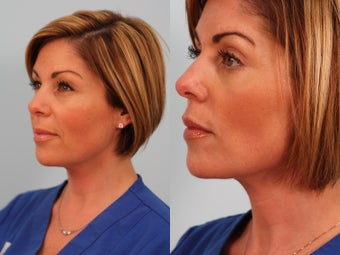 Lower blepharoplasty before 249304