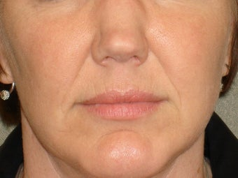 Treatment of prominent nasolabial folds with a dermal filler before 377062