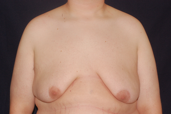 Gynecomastia before 349374