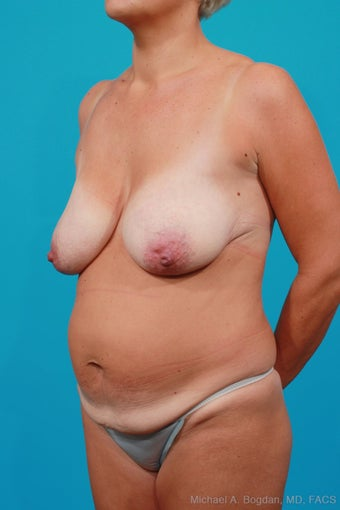 Mommy Makeover: Breast Lift & Extended Abdominoplasty before 250638