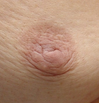 Correction of Underprojected Nipple before 426139