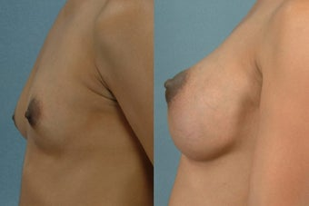 Mastopexy/Areola Reduction