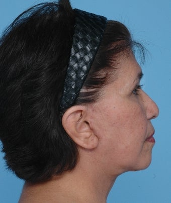 Upper Blepharoplasty and SMAS Facelift after 67247