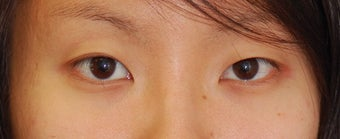 Double Eyelid Surgery - Full Incision before 307223