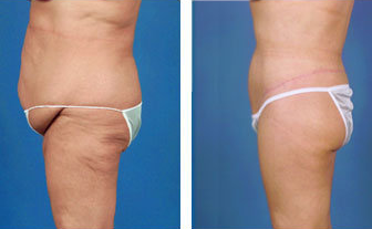 Lower body lift and tummy tuck post gastric bypass surgery - age 57 after 6813