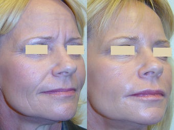 Botox and Fillers before 96253