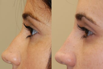 Non-Surgical Rhinoplasty with Silikon-1000 for a profile-bump before 287761