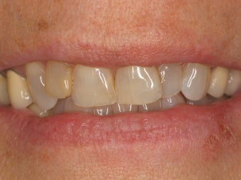 12 Porcelain Veneers before 511449