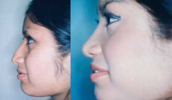 Rhinoplasty before 259669
