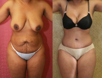tummy tuck before 304701