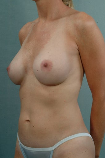 Breast Augmentation  after 240336