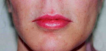 Lip Augmentation  after 167795