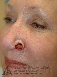 Mohs Surgery of Basal Cell Carcinoma and Recontruction before 315015