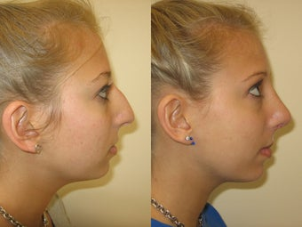 Rhinoplasty before 223020