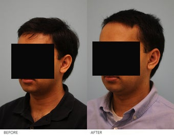 Otoplasty before 244381