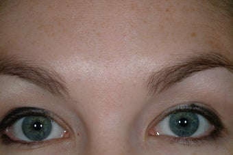 Chemical Brow lift after 89241