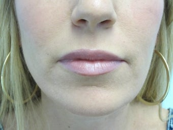 Lip Augmentation with Juvederm after 590715
