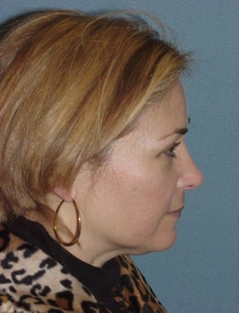 Facelift and Endoscopic Brow Lift before 227694