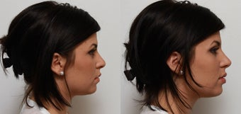 Non Surgical Nose Job Rhinoplasty before 553496