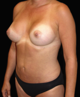 Breast Augmentation and Tummy Liposuction after 230733