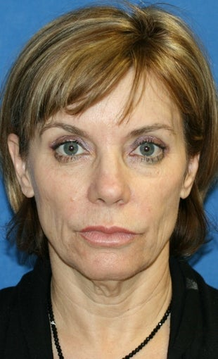 Facelift with Extended Necklift, Lateral Browlift, Fat Transfer, and Skin Pinch before 540338