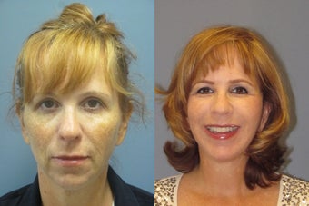 Lite Lift, Chin augmentation, liposuction of the neck before 523354