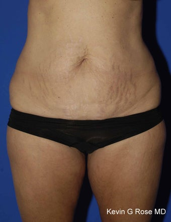 Full Tummy Tuck before 546317