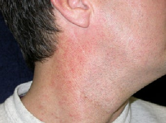 VBeam treatment for neck redness before 123283