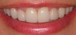 Botox for a gummy smile 371663