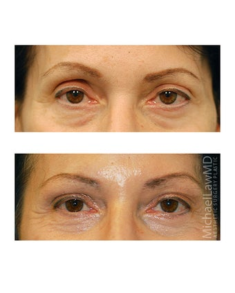 Facial Rejuvenation - Brow Lift after 395967