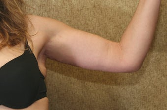 Brachioplasty or arm tuck in los angeles after 583673