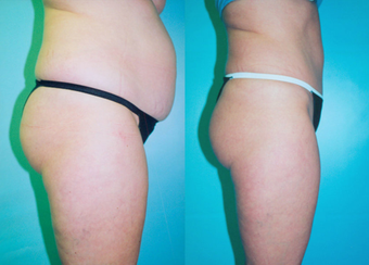 Tummy Tuck before 263629