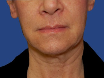Jawline / Neck Lipo after 565723