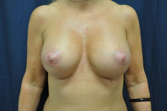Breast Augmentation after 515234