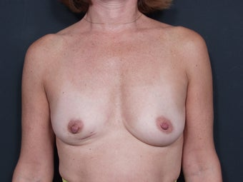 54 Year Old Female Breast Reconstruction before 643121