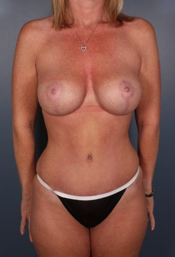 Abdominoplasty and mastopexy augmentation after 129662