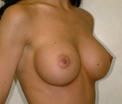 Breast augmentation before and after after 85878