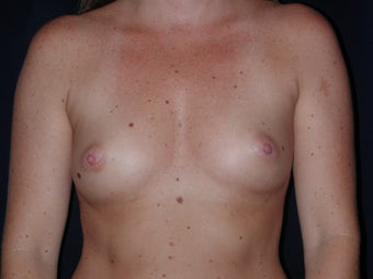Breast Augmentation before 336407